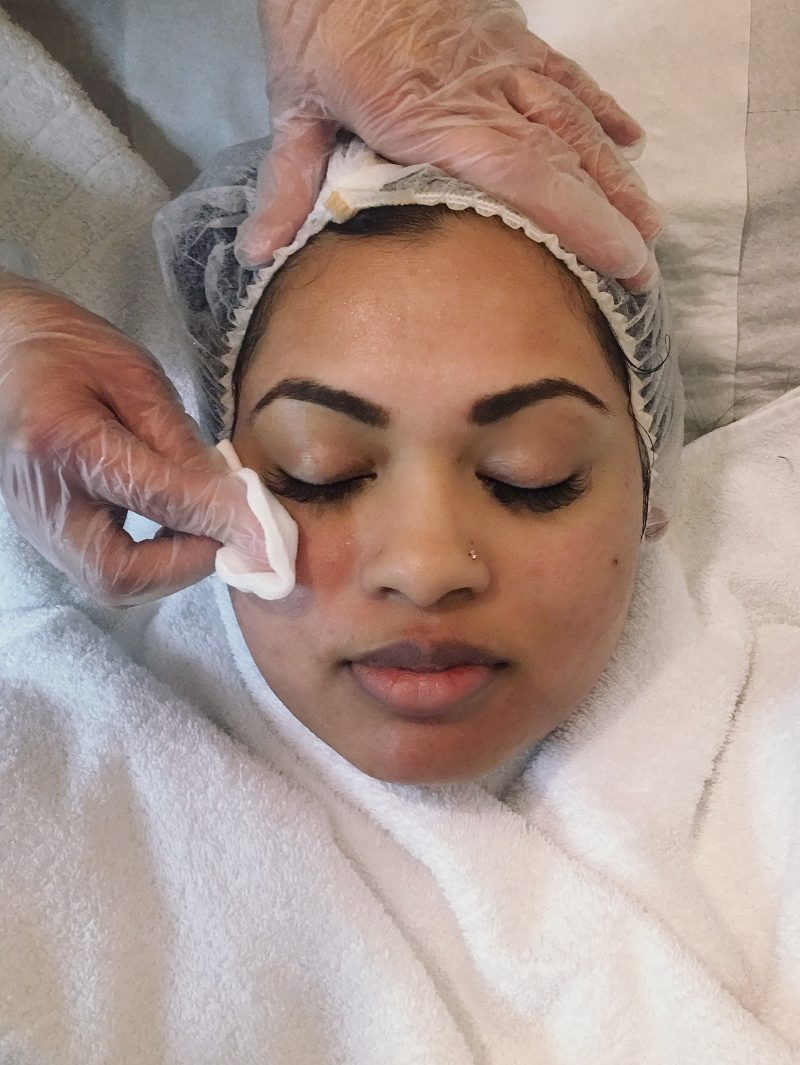 skin health spa microdermabrasion facial peel